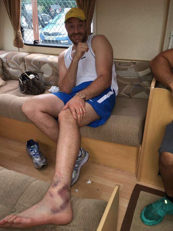 David Haye Tyson Fury Wladimir Klitschko