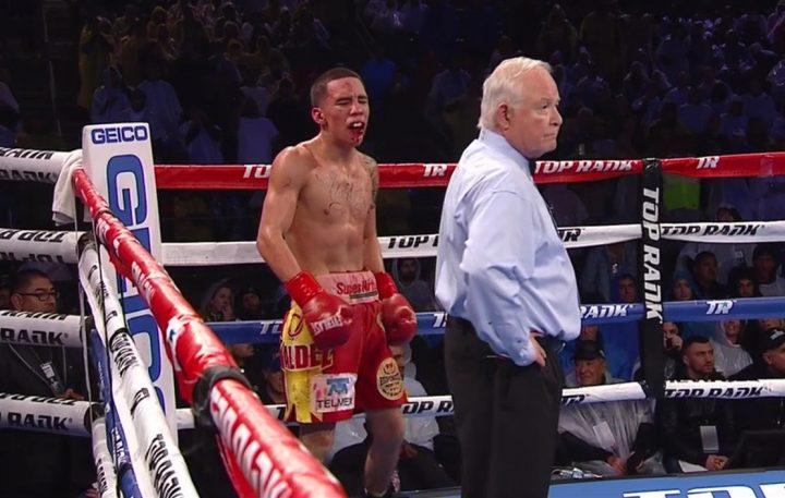 Broken Jaw Wired | Oscar Valdez S Broken Jaw Wired Shut Boxing News 24