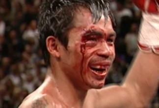 Antonio Margarito Manny Pacquiao Pacquiao vs. Margarito